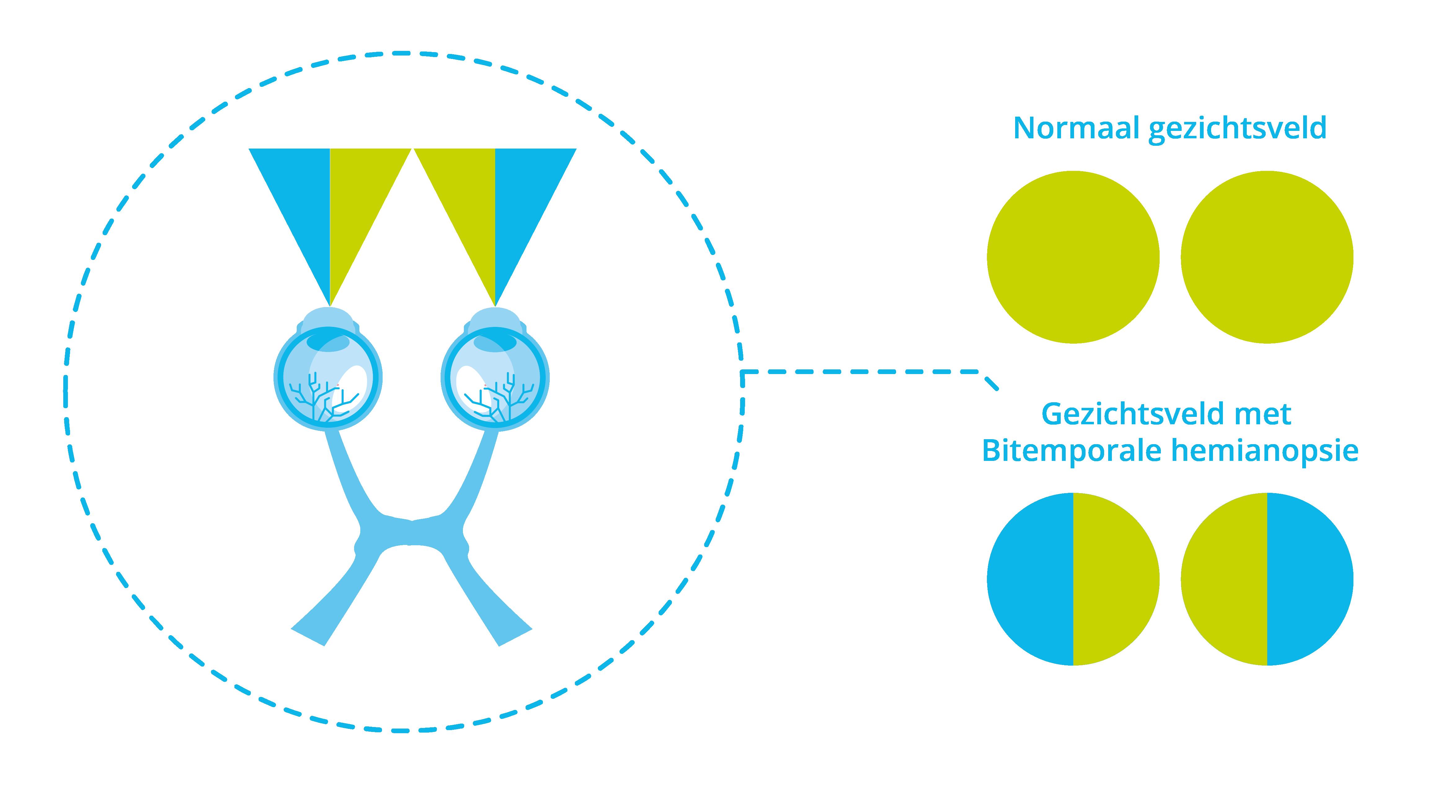 Afbeelding bitemporale hemianopsie bij een hypofysetumor