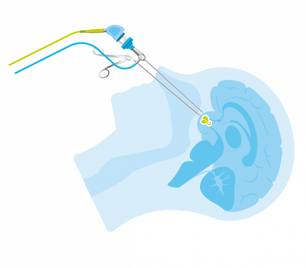Endoscopische operatie van een hypofysetumor