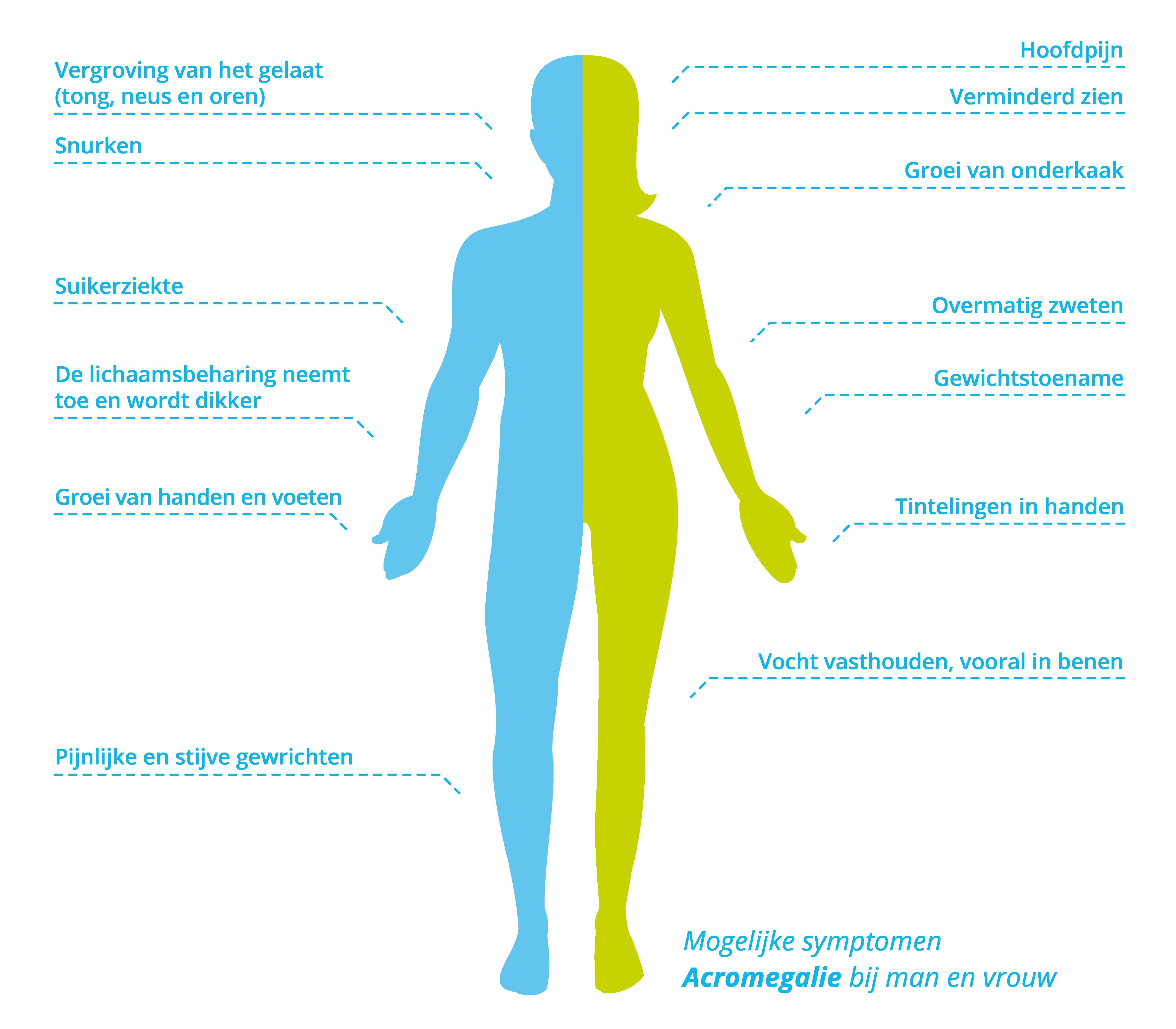 Symptomen acromegalie bij mannen en vrouwen