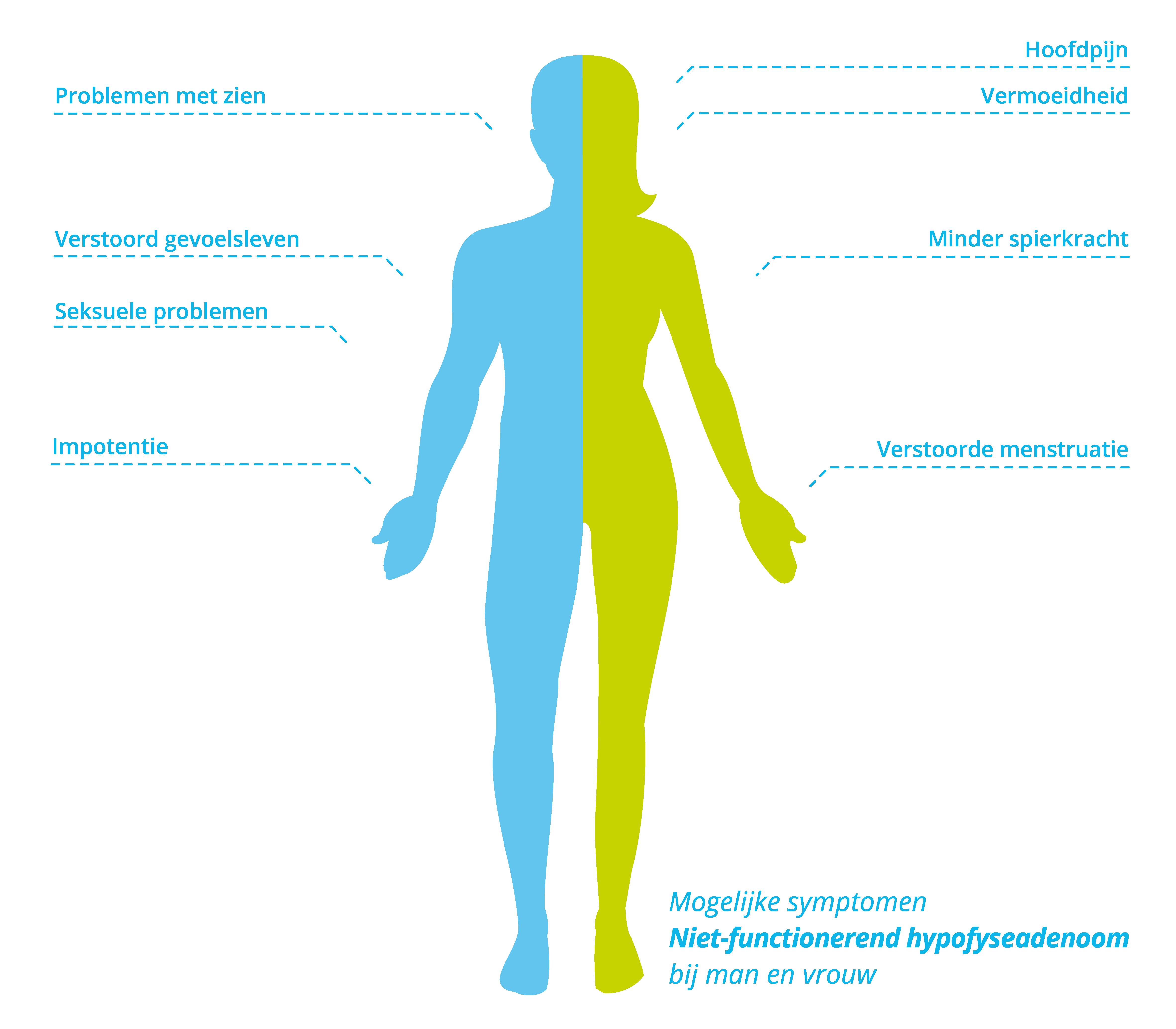 Symptomen niet-functionerend hypofyseadenoom (NFA) bij mannen en vrouwen.